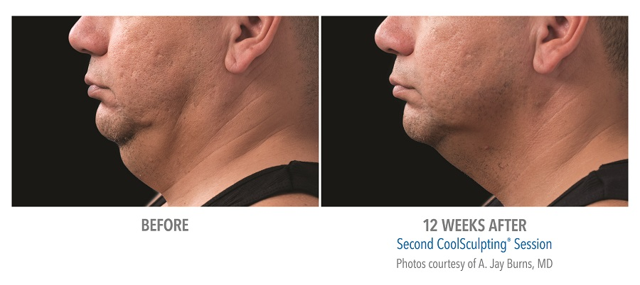 coolsculpting for men denver co