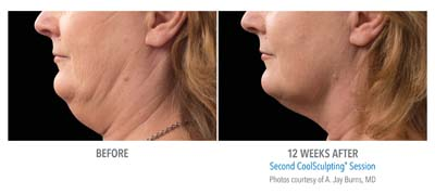 coolsculpting neck treatment denver co
