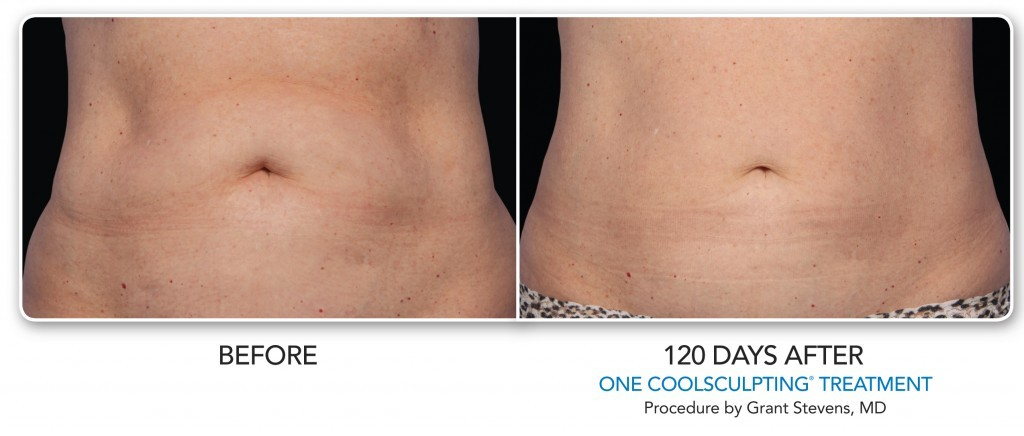 coolsculpting love handles denver