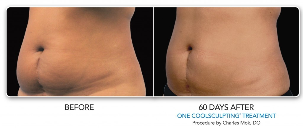 abdomen fat reduction coolsculpting
