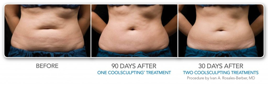 coolsculpting in denver colorado