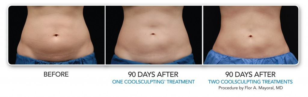 coolsculpting pricing