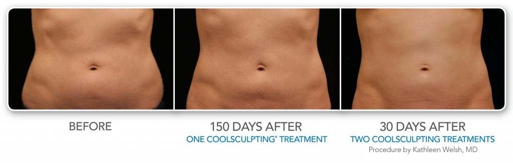 coolsculpting abdomen cherry creek co