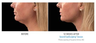 coolsculpting neck fat removal