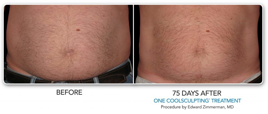 denver coolsculpting cherry creek