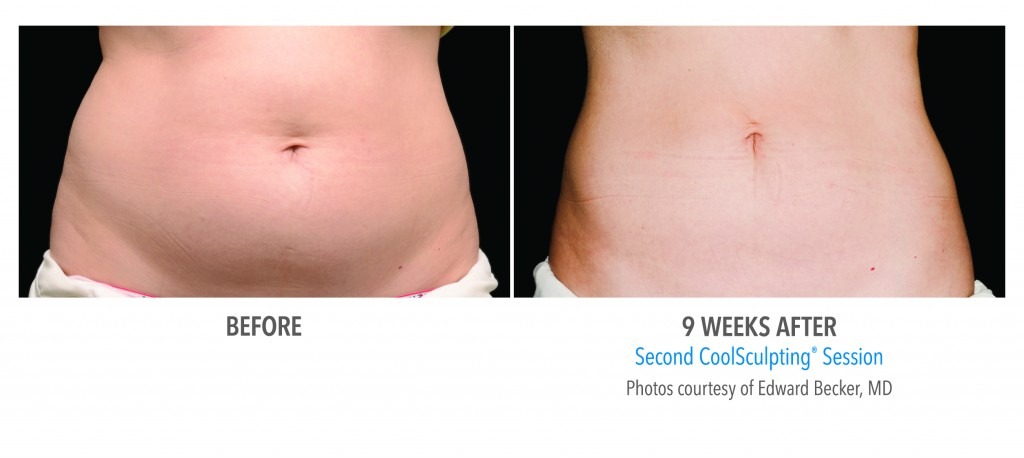 coolsculpting MD